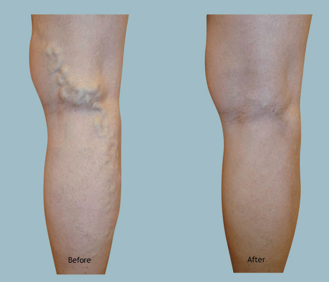 Spring of Youth Medical Group Varicose Veins Treatment Before & After Gallery